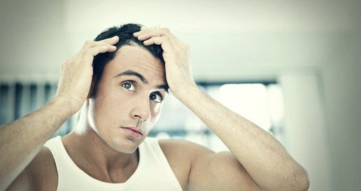 Hairloss - stop a receding hairline